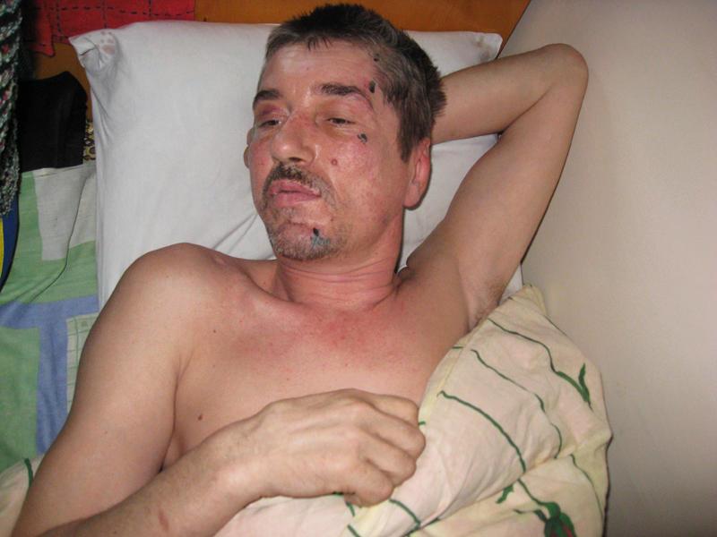 Від важкої черепно-мозкової травми чоловік  частково втратив пам'ять. Йому важко говорити.