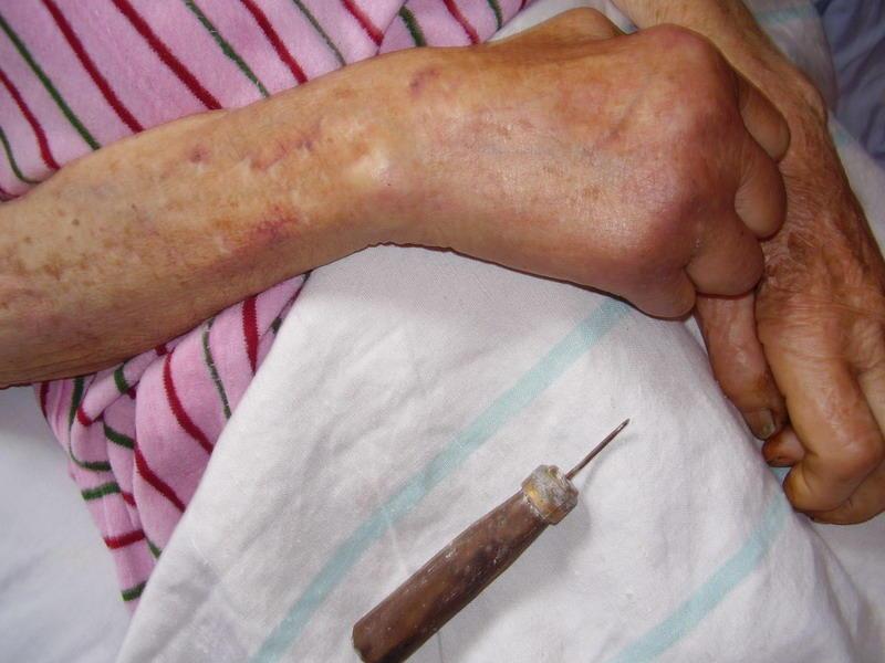 Цим шилом нічні гості скололи бабусі не лише руки, а й шию.