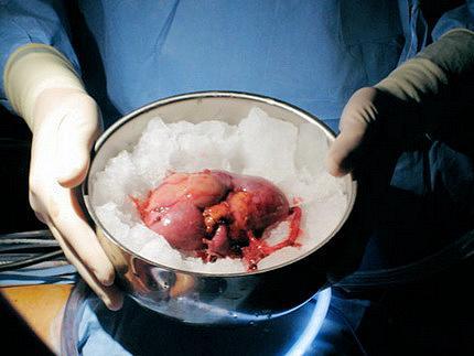 У МОЗ хочуть пересаджувати органи від померлих.