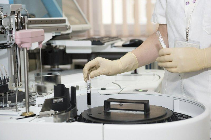 Медзаклади області в листопаді продовжили проводити закупівлю обладнання, необхідного для протидії коронавірусу