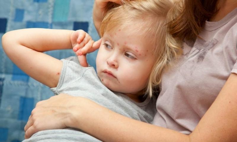 Серед захворілих 136 дорослих та 108 дітей