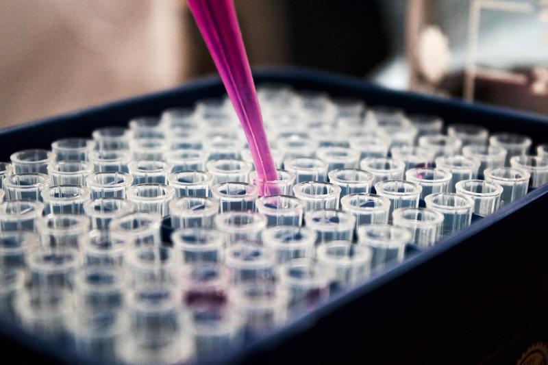 28 серпня на Хмельниччини Сovid-19 діагностували в 125 людей