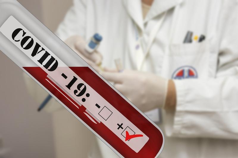 Станом на 13-у годину 1 травня в області лабораторно підтверджено 446 нових випадків COVID-19