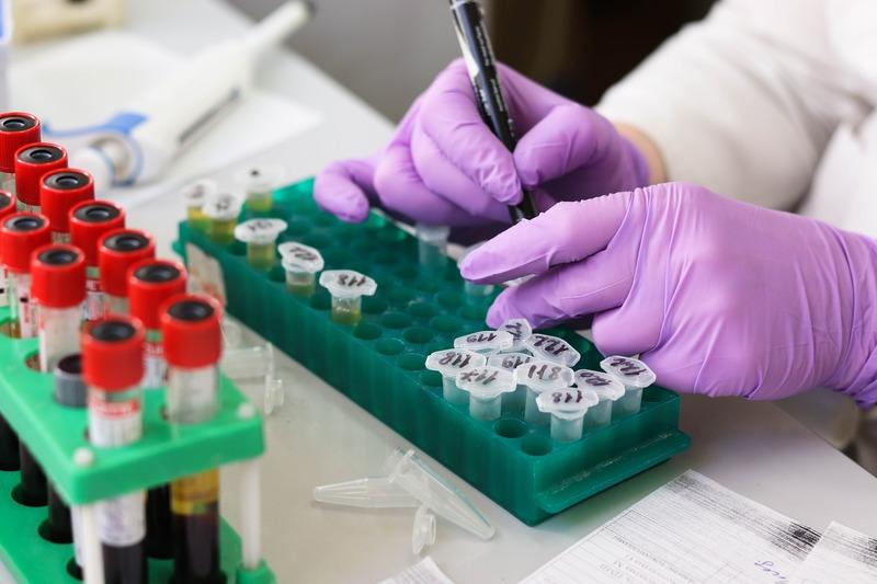 Станом на 11-у годину 5 квітня в області лабораторно підтверджено 439 нових випадків COVID-19