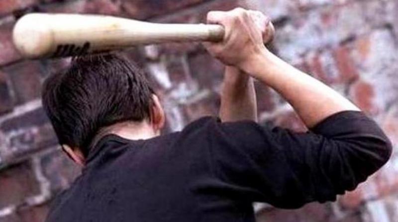 Між розігрітими алкоголем чоловіками виник конфлікт, в ході якого 42-річний батько вдарив дерев'яною битою сина в голову