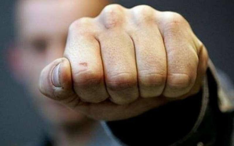 На Шепетівщині поліцейські затримали чоловіка за побиття свого односельця
