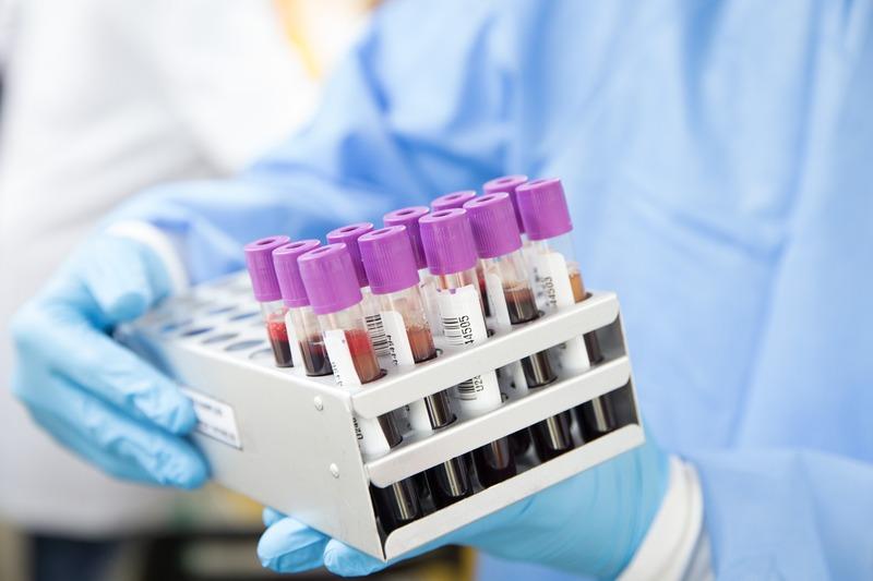 В обласному центрі тестують на коронавірус не тільки медиків
