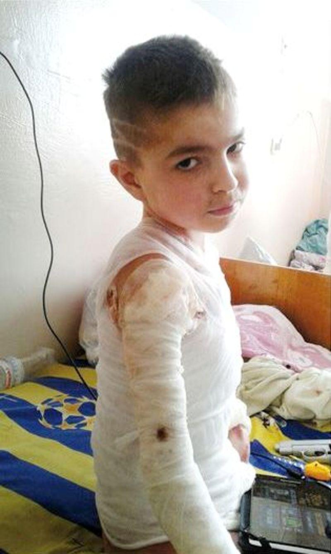 Хлопчик постраждав через необережне поводження з вогнем
