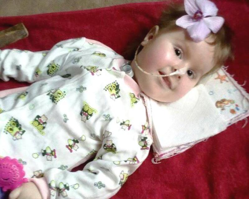 Допомоги потребує 1,5-річна Богдана Кивлюк