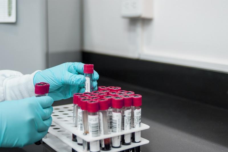 ІФА-тести робитиуть медикам та деяким пацієнтам