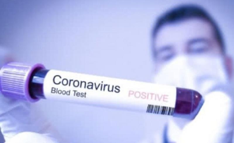 У померлої медпрацівниці підтвердили коронавірусну інфекцію