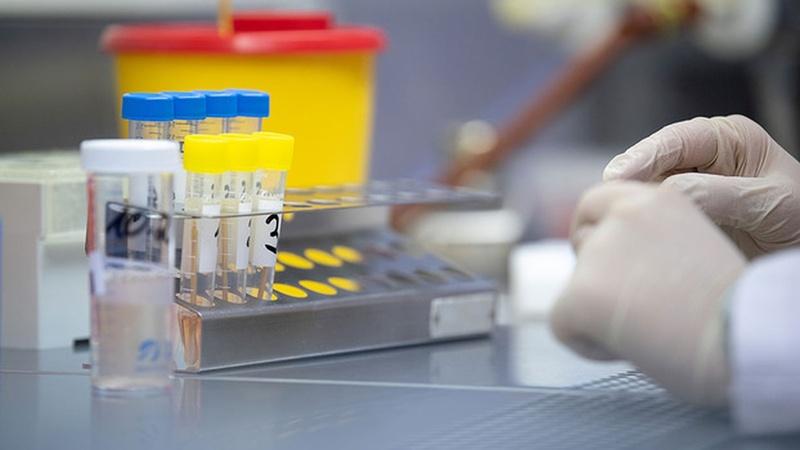 В області готуються розпочати тестування населення на антитіла до ...