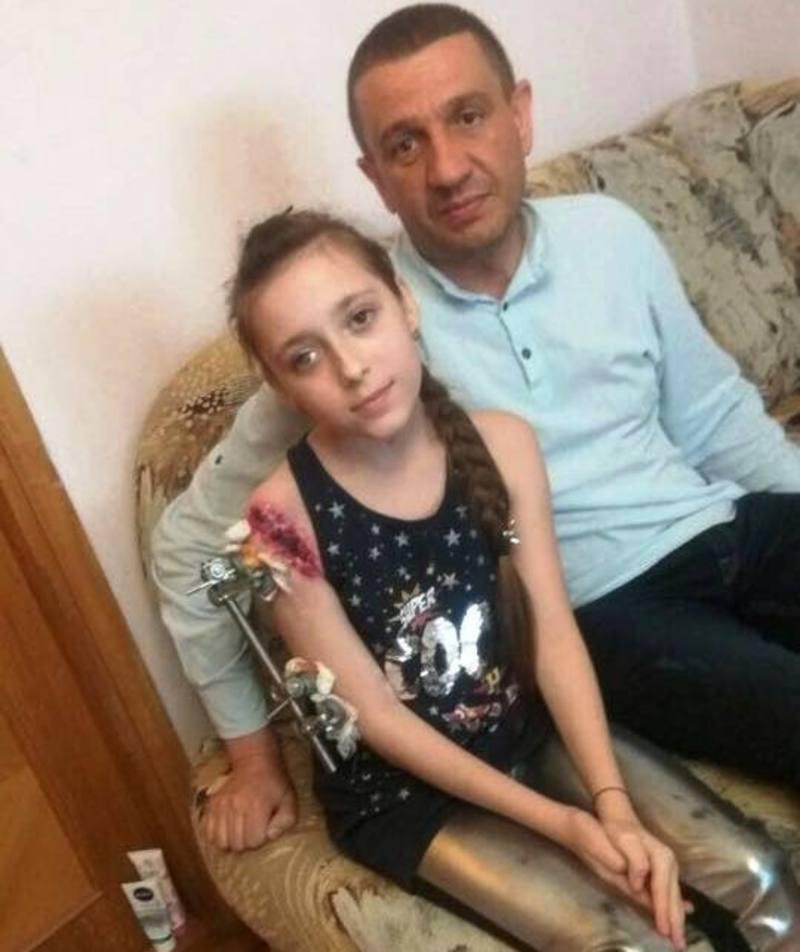 Найбільше постраждала в резонансній ДТП 11-річна Вікторія Манзюк