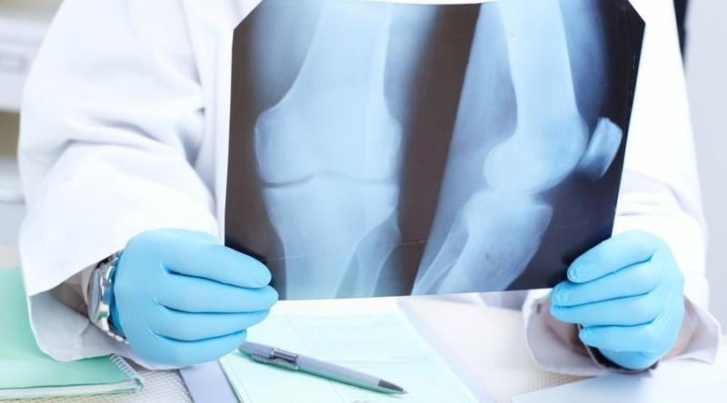 За два дні вихідних, 28 хмельничан зламати собі руку чи ногу