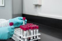 Станом на 11-у годину 13 червня в області лабораторно підтверджено 32 нових випадків COVID-19